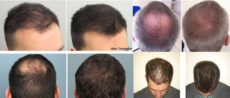 Laser Hair ReGrowth Hair Growth System Hair Loss Treatment
