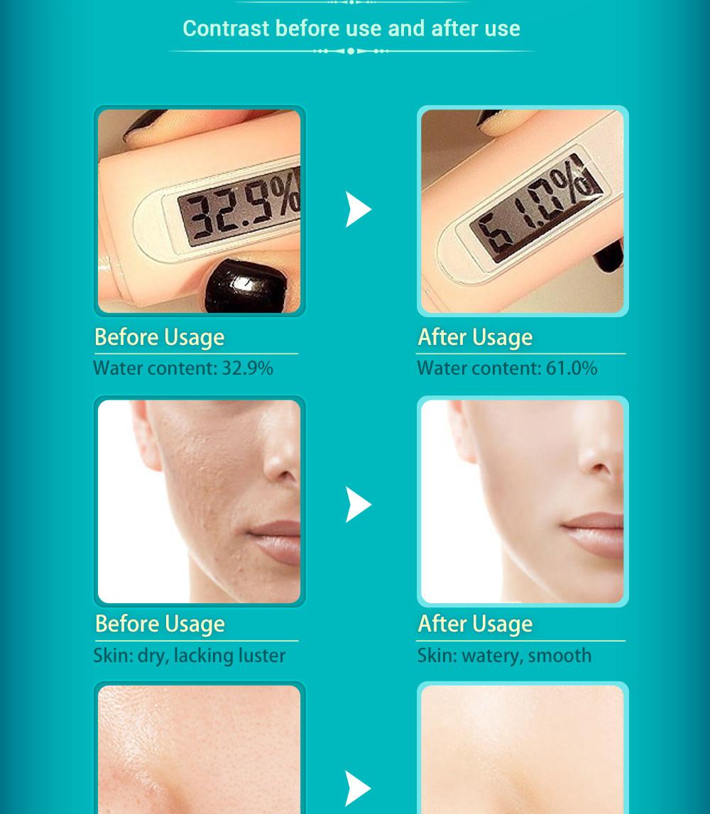 SOONPURE Hyaluronic Acid Facial Cream Moisturizing Pores Shrink Firm Whitening Skin