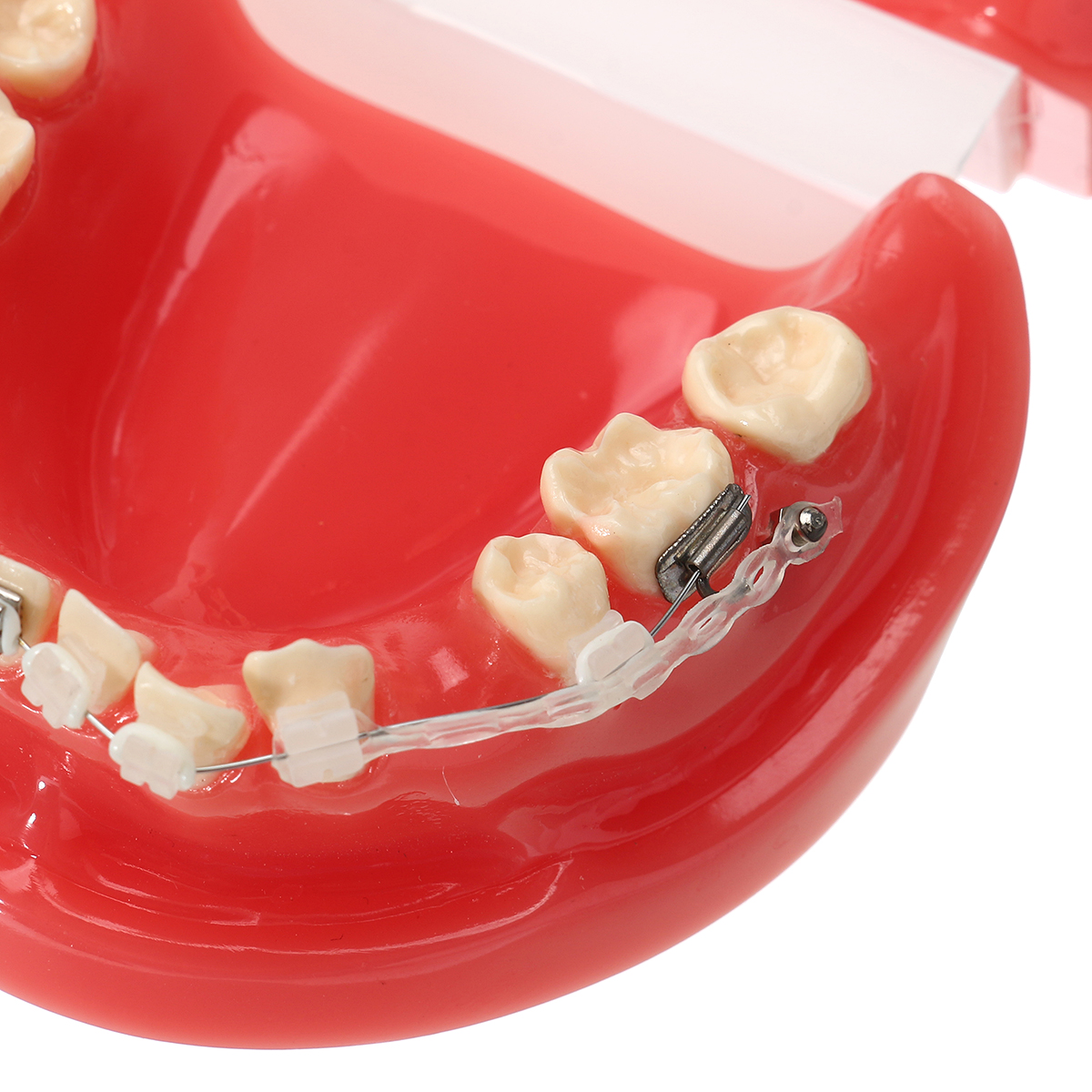 Dental Durable Ceramics Model With Elastic Rubber Chain