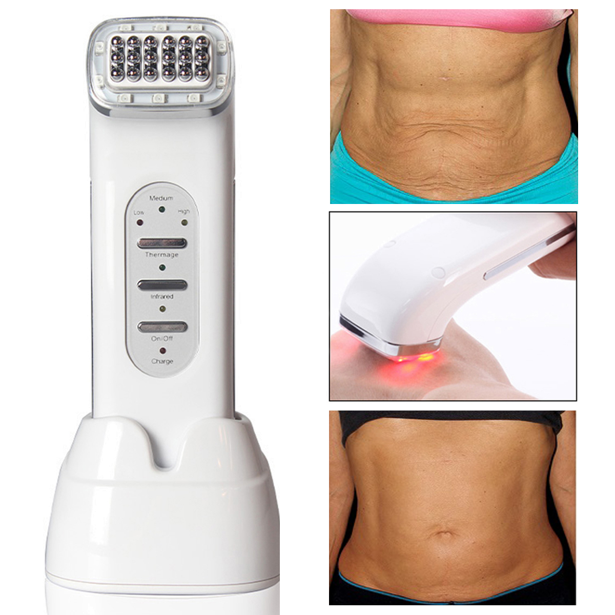 RF Radio Frequency Rejuvenation Machine Anti Aging Wrinkles Removal Skin Tightening Lifting Beauty