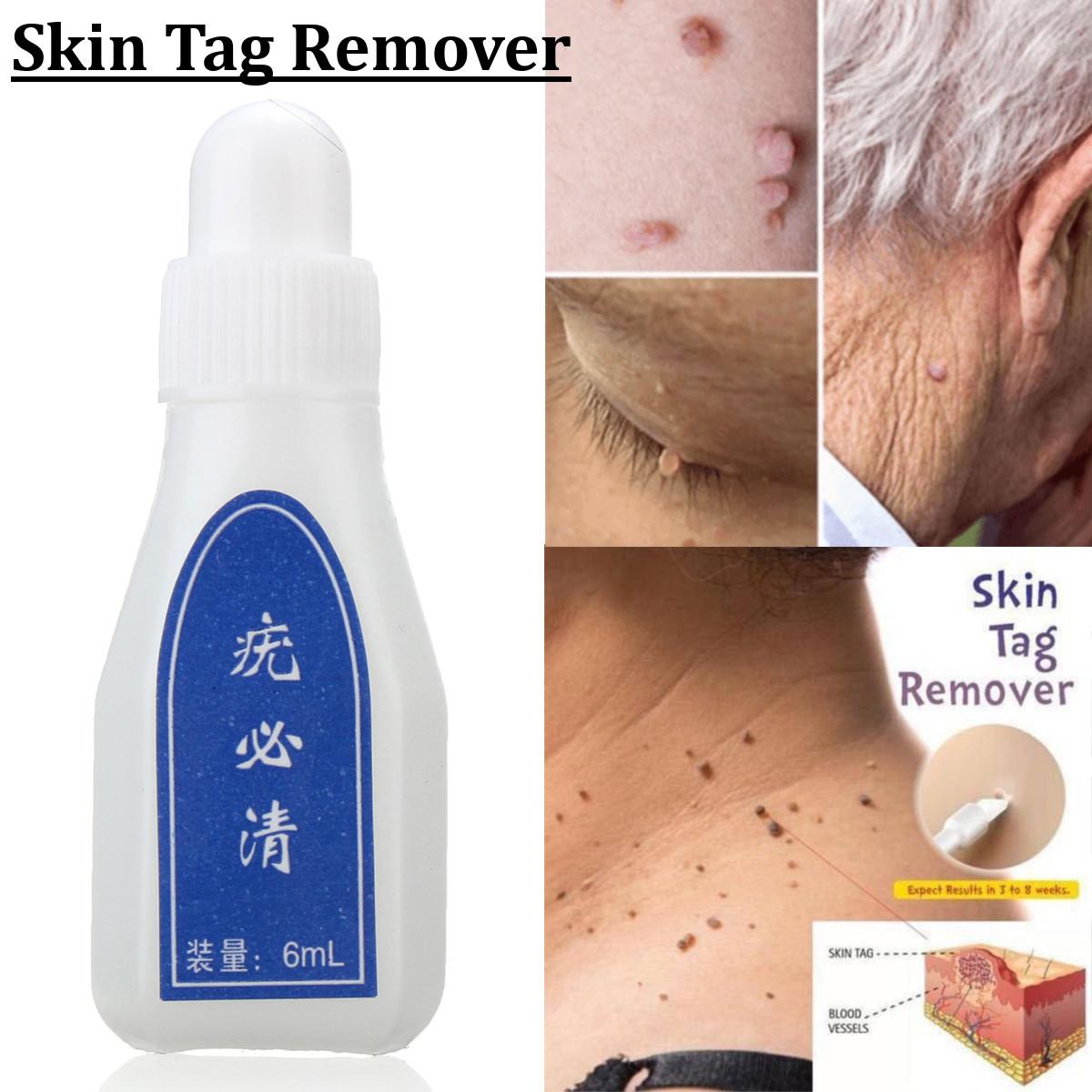 Skin Wart Removal Liquid