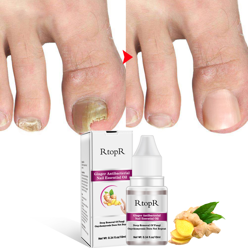 Nail Essential Oil Fungal Toenail Fungus Treatment Liquid