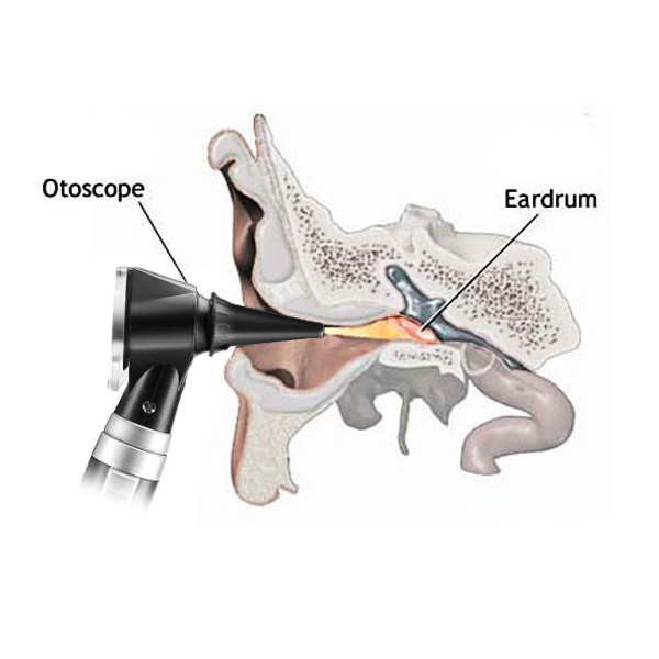Professional LED Bright Illumination Otoscope Auriscope Diagnostic Ear Care Mirror Kit