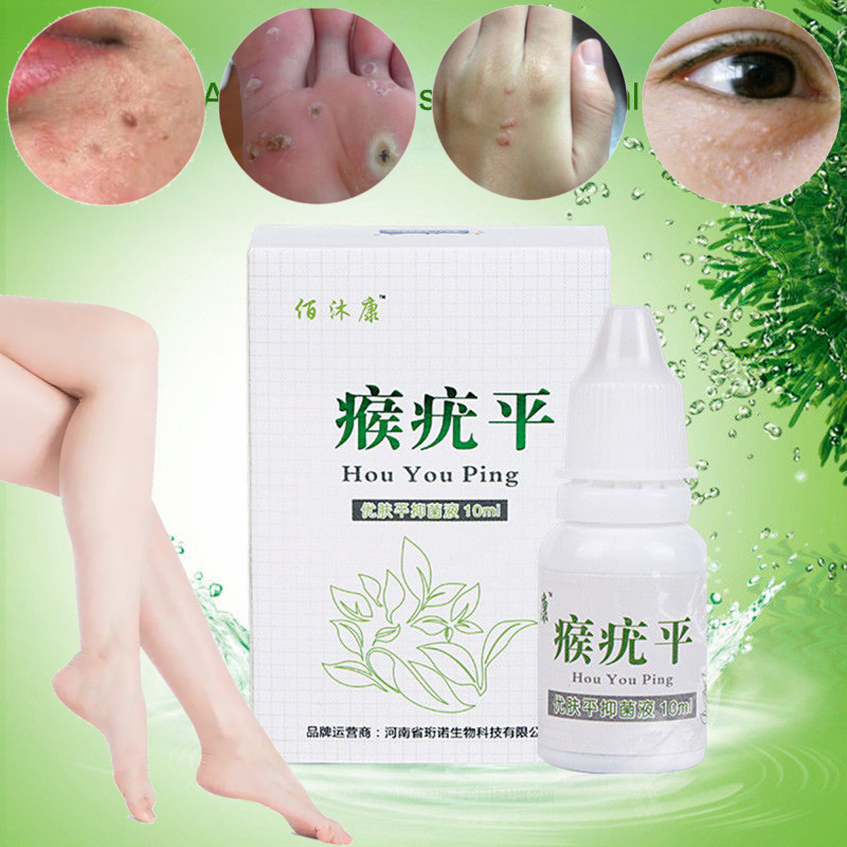Herbal Natural Skin Tag Remover