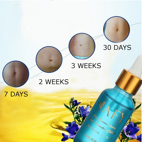 30ML Remove Stretch Marks Essential Oil Obesity Postpartum Repair