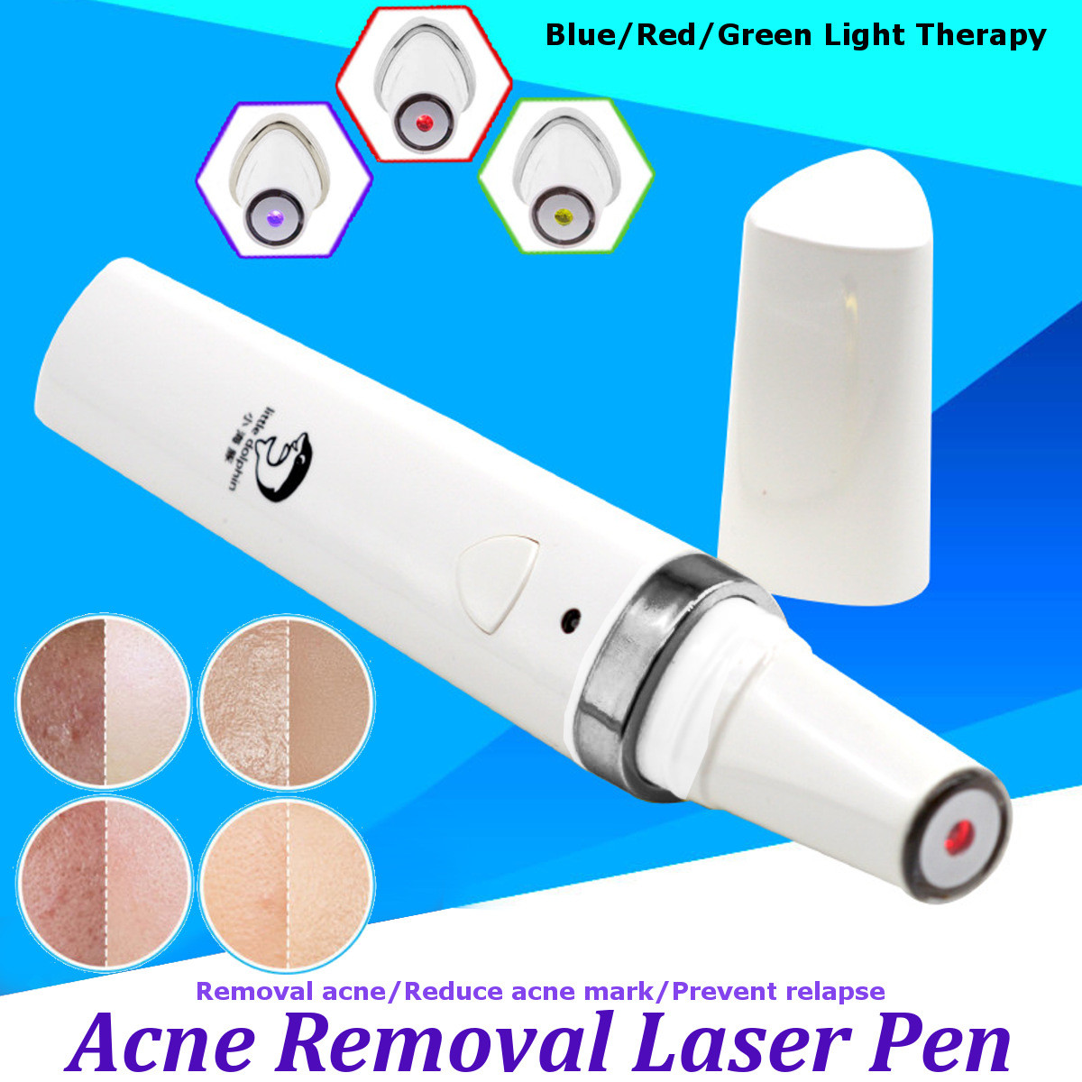 Therapy Acne Laser Pen Soft Scar Removal Treatment Device