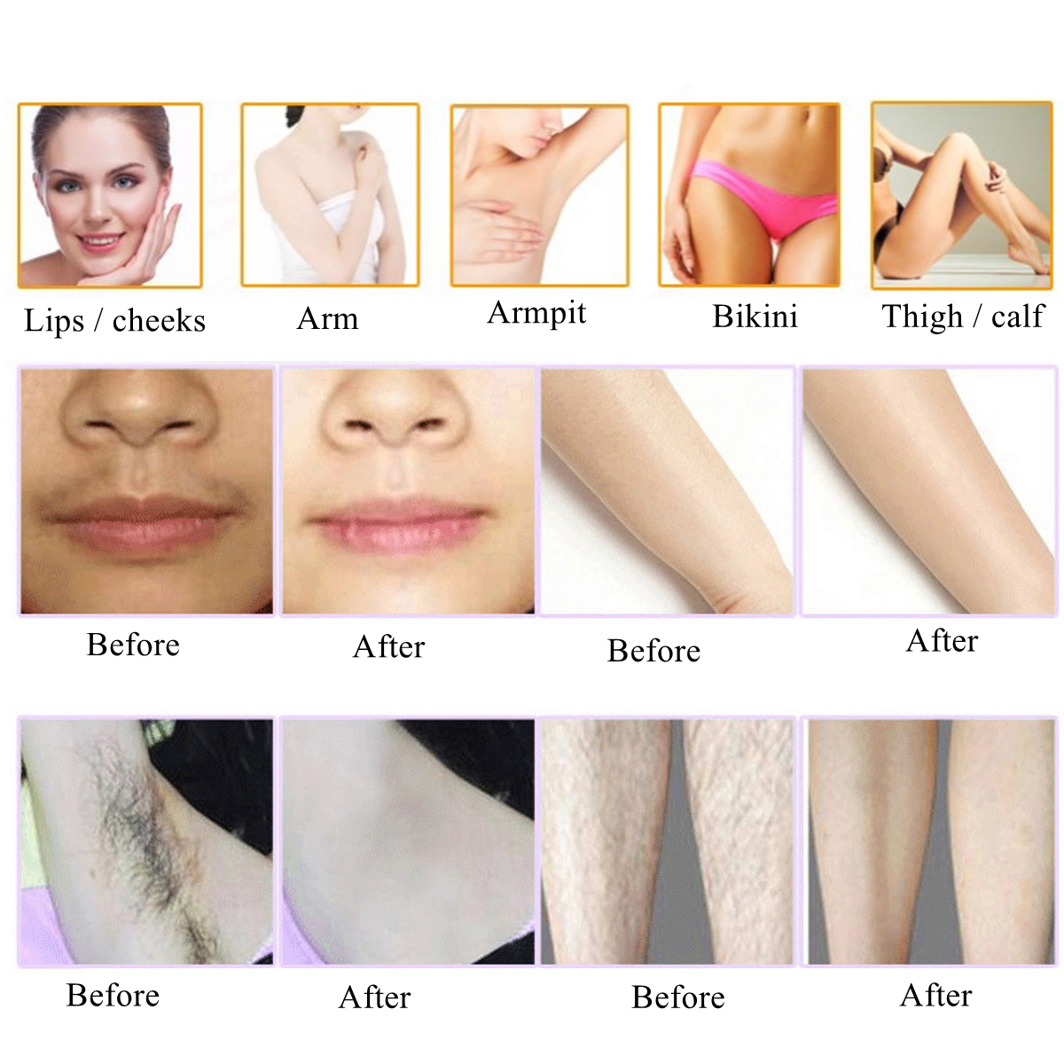 5 Level Portable Laser IPL Machine Total Body Hair Removal