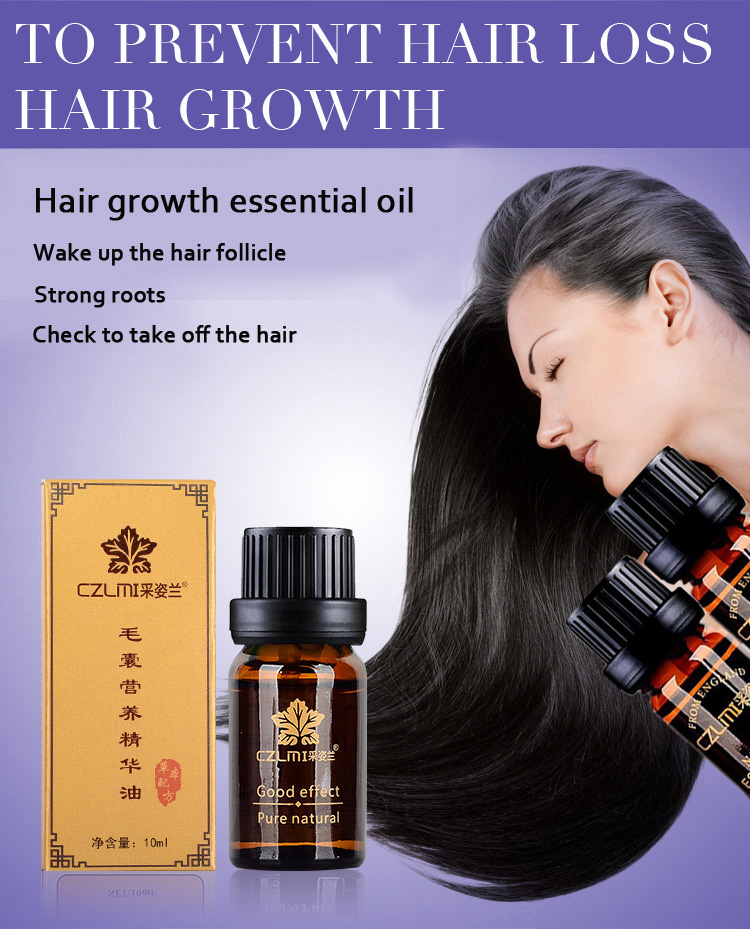 CZMIL Fast Hair Growth Essence Oil Regrowth Anti Hair Loss Pure Chinese Herbal Extract Lavender