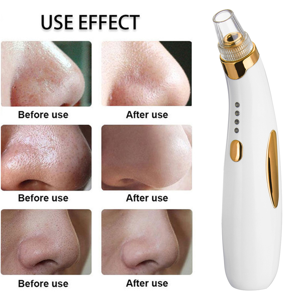 Electric Facial Skin Care Pore Blackhead Remover