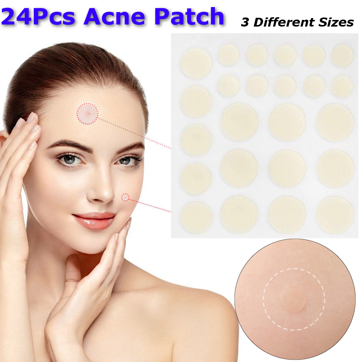 24Pcs Face Spot Scar Care Treatment Stickers Acne Patches