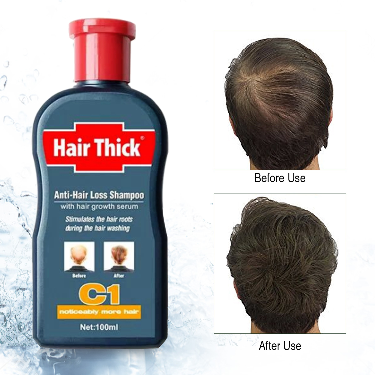 100ml Anti-Hair Loss Hair Growth Shampoo Treatment