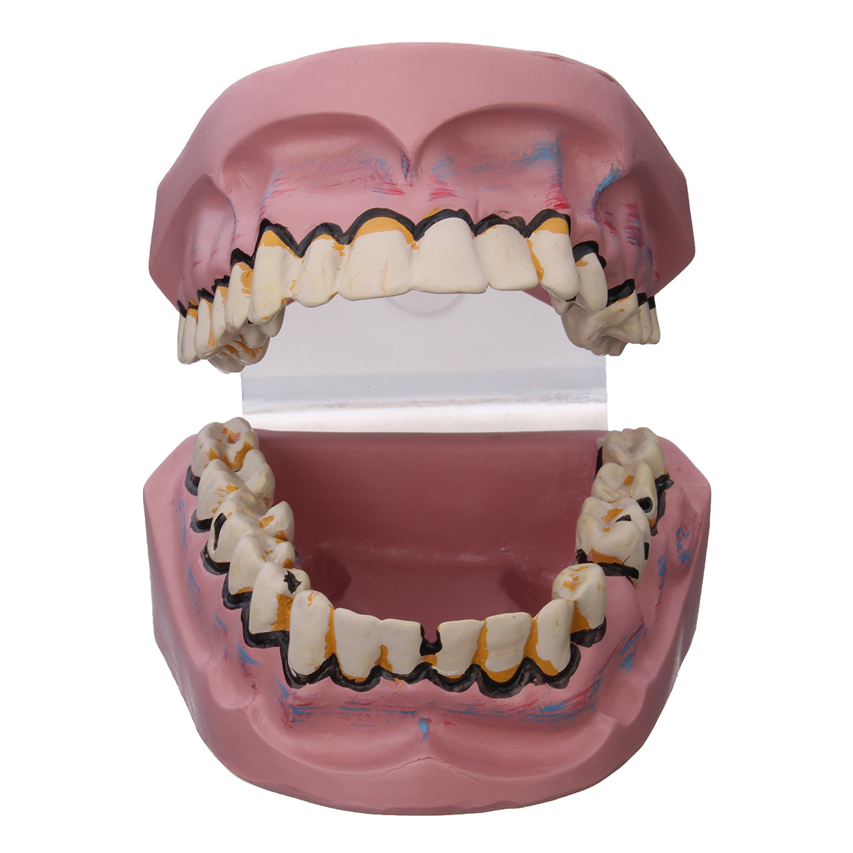 Dental Disease Teeth Model Oral Tooth Model Smoking Harm Disease Teeth Implantation Medical Model