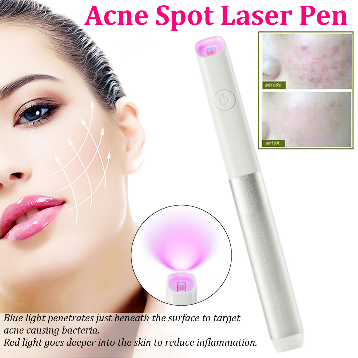 Laser Pen Wrinkle Removal Device Beauty Machine