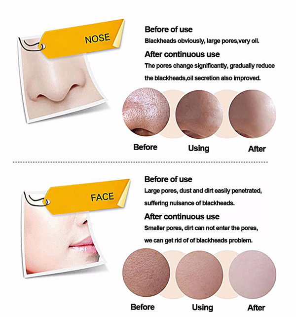 Banggood Blackhead Suction Mask Peel-off Purifying Mild Removal Face Care Smoothes Skin