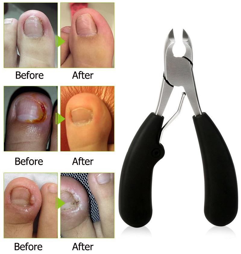 Y.F.M® Stainless Steel Ingrown Toenails Nipper Clipper Precision Cutter Thick Pedicure Tool