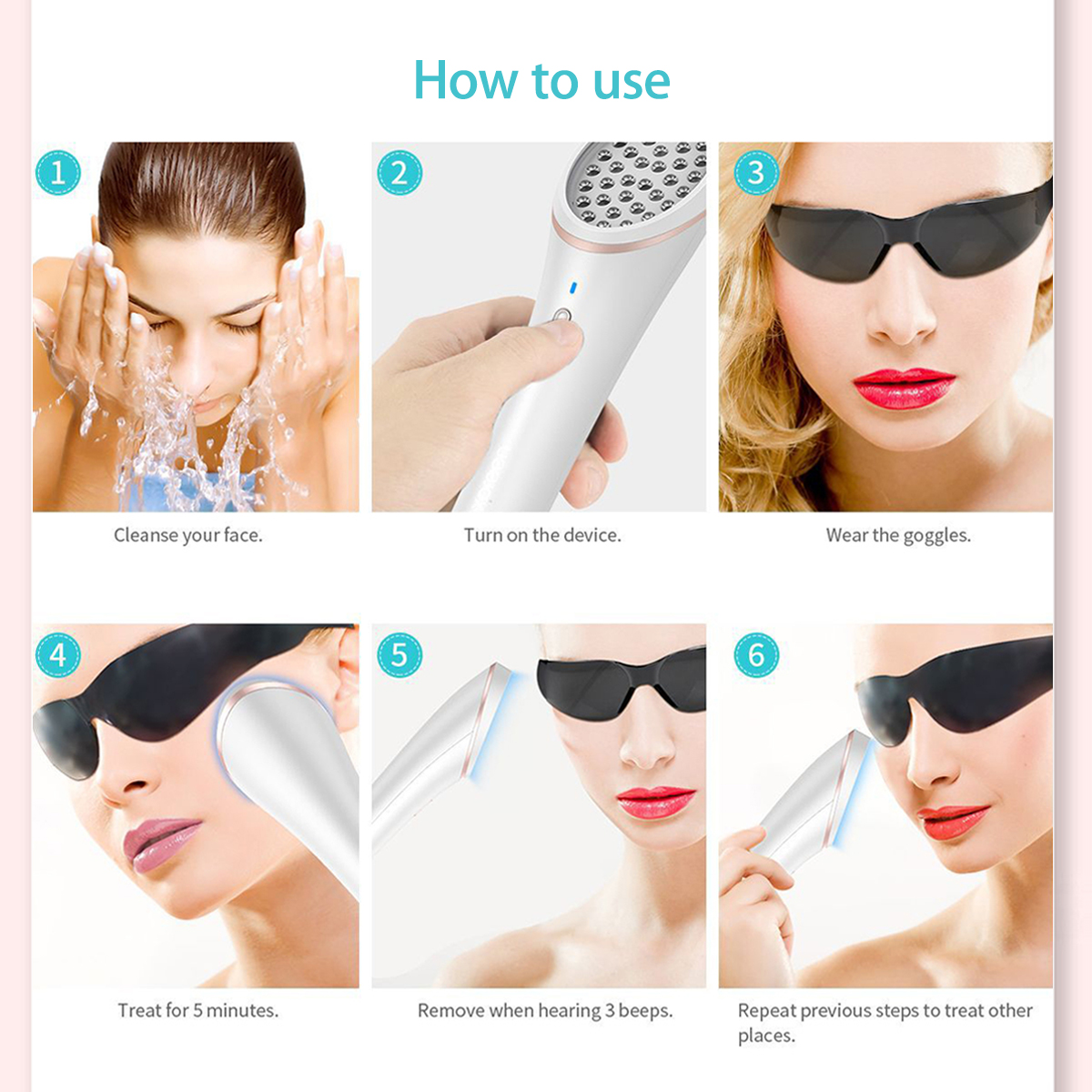 Xpreen Electric Light Therapy Wrinkle Acne Removal Device