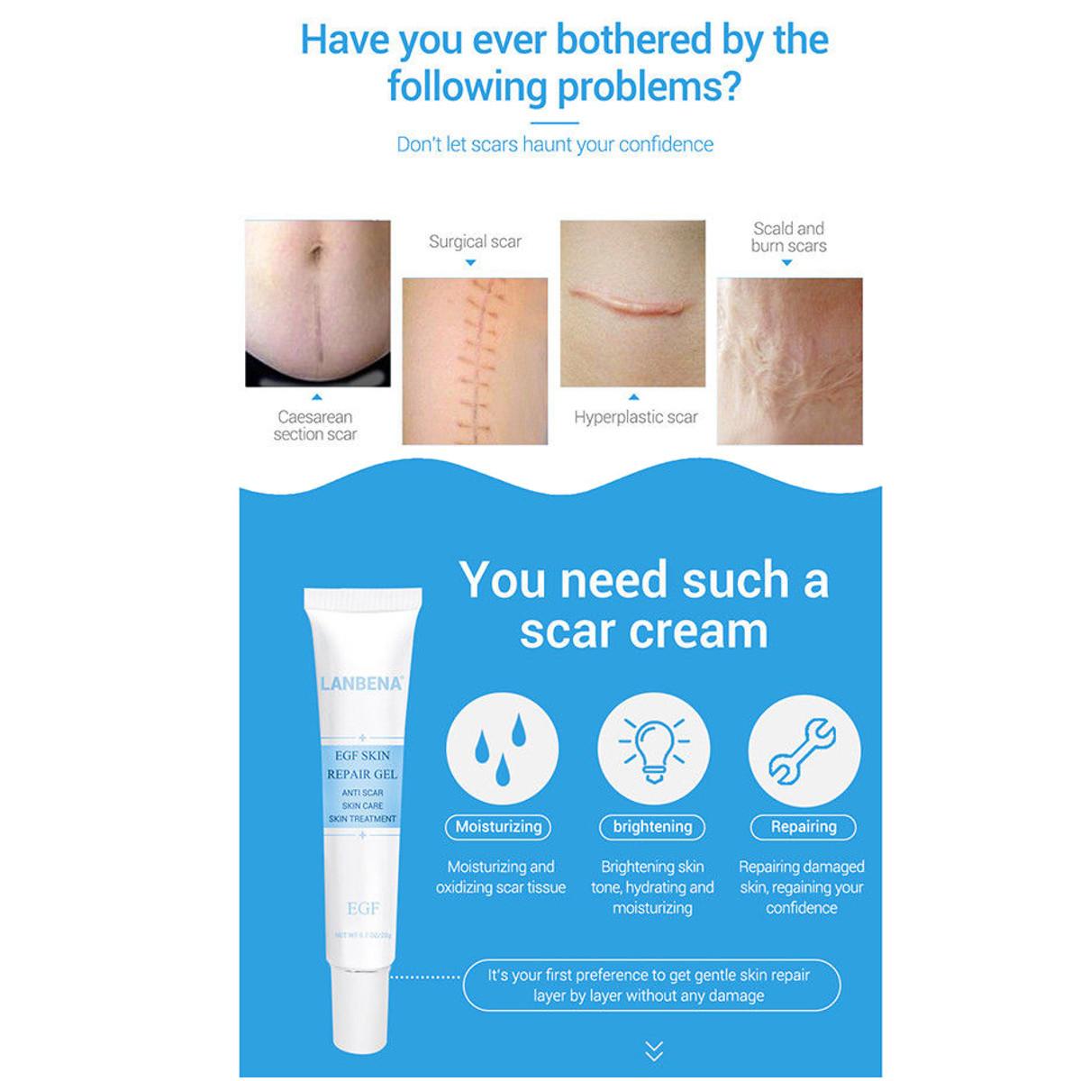 Scar Acne Removal Cream