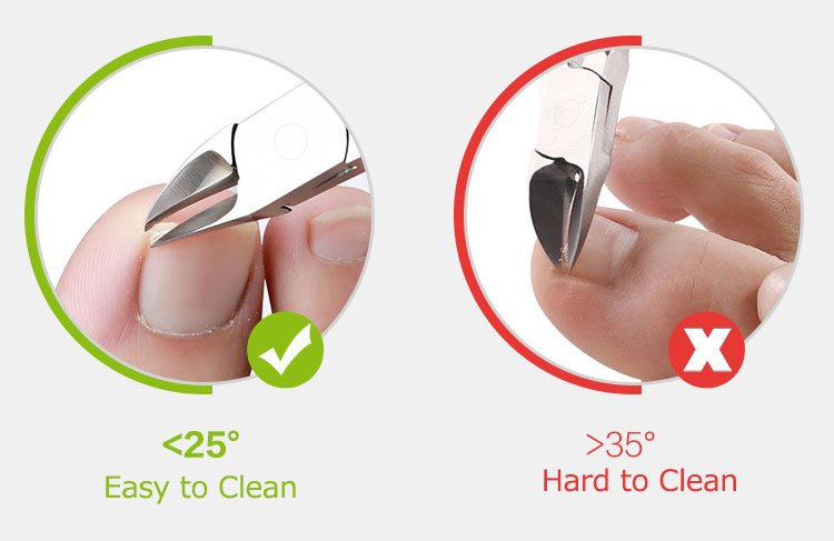 Y.F.M® 3 In 1 Ingrown Toenails Nipper Clipper File Lifter Cutter Kit Stainless Steel Paronychia Care