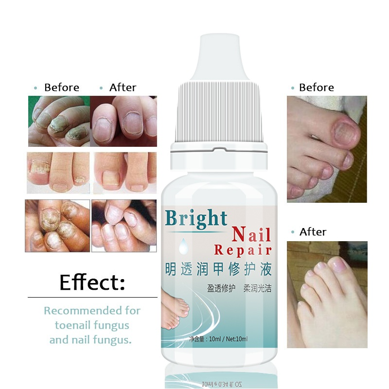 3Pcs LANTHOME Onychomycosis Curing Nail Foot Whitening Fungus Removal Toe Fungal Nail Treatment 10ml