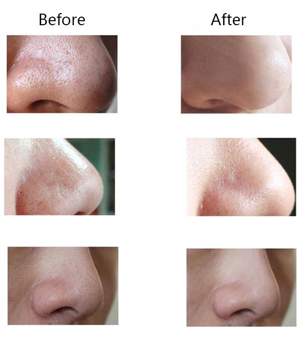 Electric Facial Vacuum Blackhead Acne Remover Lifting Firmin