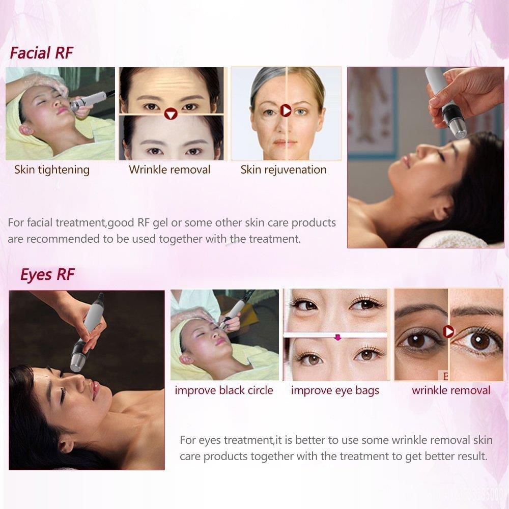 Mini RF Thermage Liposuction System Beauty Machine House Firming Tighten Anti Wrinkle Remove Eye Bag