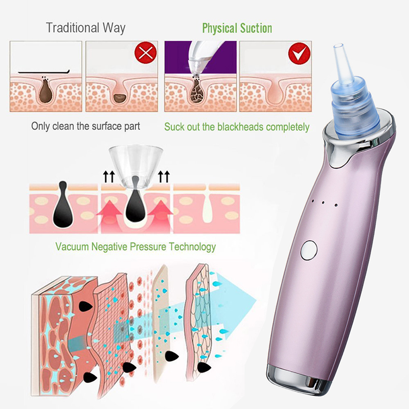 USB Blackhead Remover Electronic Facial Pore Cleaner Acne Vacuum Remover Lifting Firming Skin