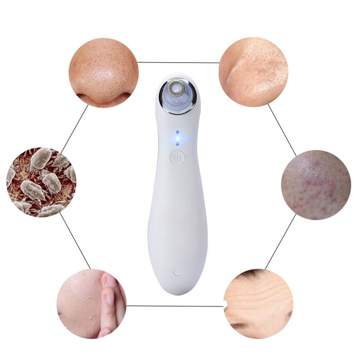 Portable Electric Facial Blackhead Suction Tool Rechargeable Acne Remover Tighten Pore Cleansing