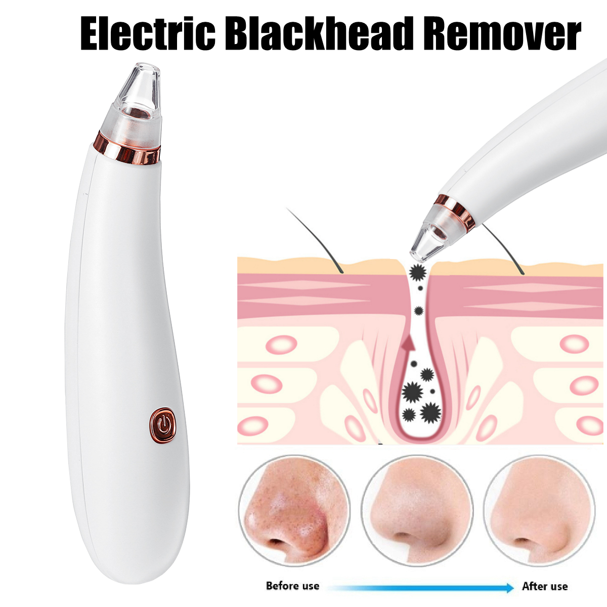 Blackhead Remover Vacuum Facial Pore Cleanser Electric Acne Comedone Extractor Kit Battery Electric Blackhead Suction Tool
