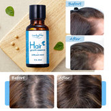 Hair Growth Essence Oil