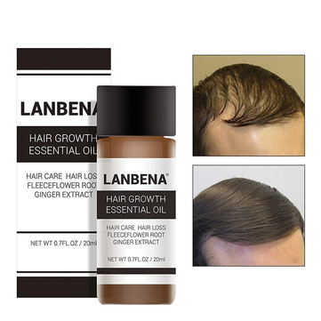 LANBENA Hair Growth Essence Liquid Herbal Extract 20ml