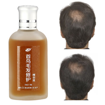 Plant Extract Radix Hair Repair Serum Follicle Activating Repair Care Growth Treatments Liquid