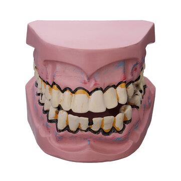 Dental Disease Teeth Model Oral Tooth Model Smoking Harm Disease Teeth Implantation Medical Model