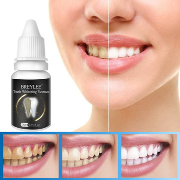 10 ml Teeth Whitening Cream Remove Black Tooth Yellow Tooth