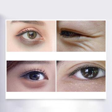Lighten Eye Bags Fine Lines Hydrating Eye Mask